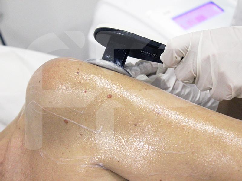 Fisio Point - Fisioterapia a Roma, Riabilitazione, Poliambulatorio, Medical Fitness, Tecar, Tecarterapia, Riabilitazione di spalla