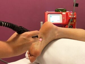 Fisio Point - Fisioterapia a Roma, Riabilitazione, Poliambulatorio, Medical Fitness, Hilterapia, laser yag, piede