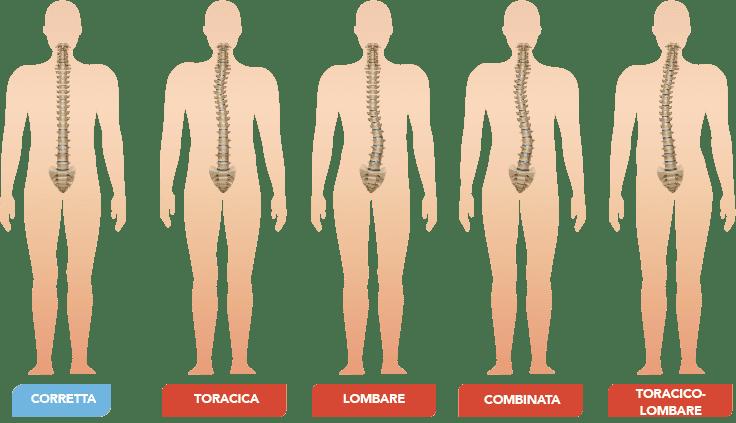 Fisioterapia a Roma, Centro Specializzato in Ginnastica Posturale a Roma Monteverde. Con una visita Gratuita valutiamo i problemi di postura e impostiamo il percorso correttivo più adatto, scoliosi, cervicalgia, lombalgia, mal di schiena, fisiatra, infiltrazioni acido ialuronico, mesoterapia, cortcosteroidi, gonartrosi coxartrosi rizartrosi artrosi di spalla artrosi di caviglia