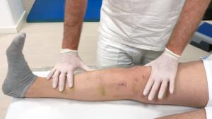 Fisio Point - Fisioterapia a Roma, Riabilitazione, Poliambulatorio, Medical Fitness, trattamento cicatrici